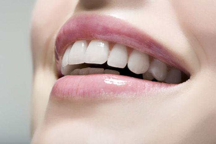 dental implants west los angeles