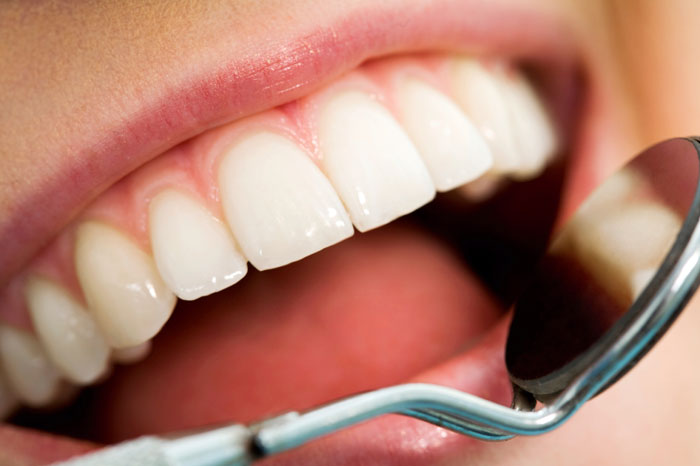 Dental and Gum Check-Ups in Encino CA