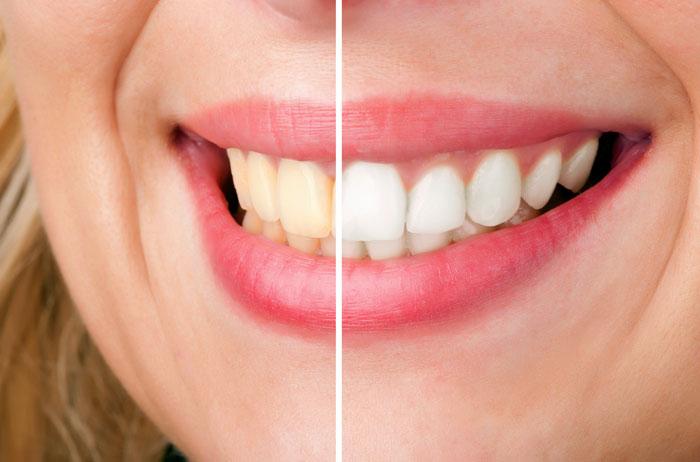 Teeth Whitening in Encino CA